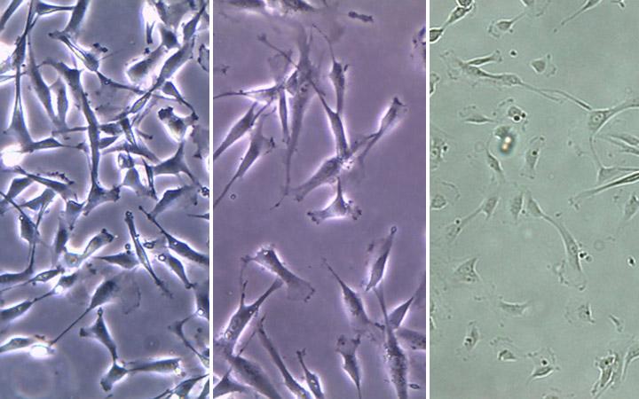 neonatal cpus